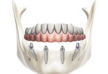 odontoiatra.it, implantologia