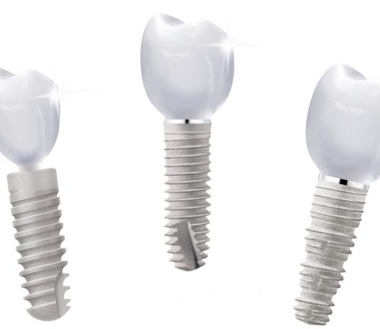 odontoiatra.it, protesi, impianti dentali