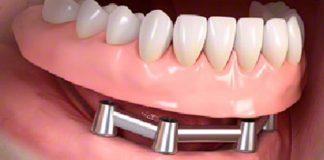 odontoiatra.it, odontoiatria implantare, protesi