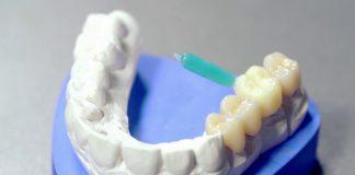 odontoiatra.it, odontoiatria implantologica