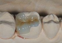 odontoiatra.it, odontoiatria estetica