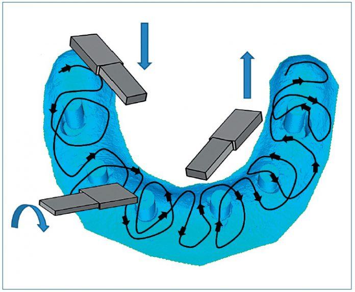 odontoiatra.it, scanner intraorale