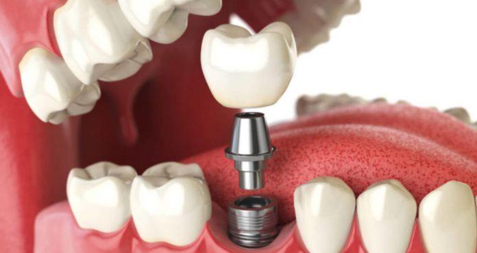 odontoiatra.it, implantoprotesi