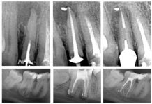 odontoiatra.it, sigillatura endocanalare