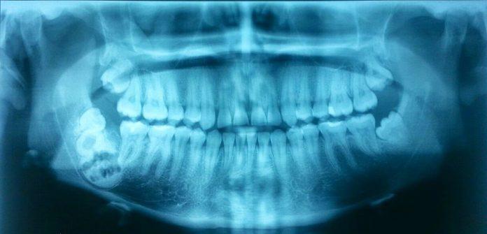 odontoiatra.it, cementoblastoma