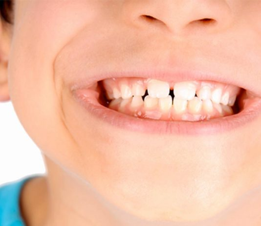 odontoiatra.it, tumefazione mascellare