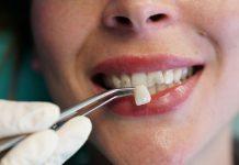 odontooiatra.it, odontoiatria estetica
