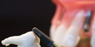 odontoiatra.it, perimplantite