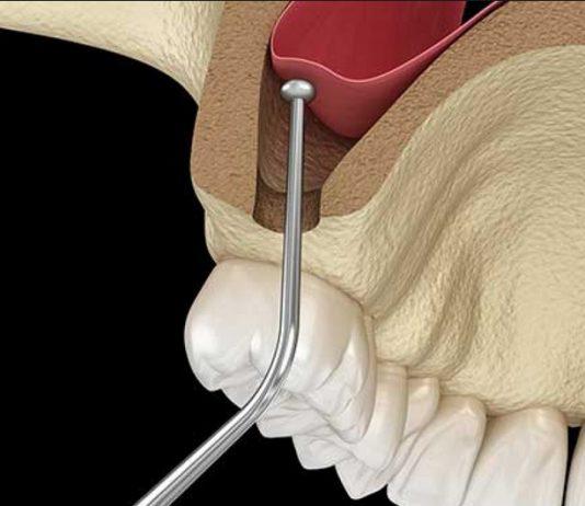 odontoiatra.it, rialzo del seno mascellare