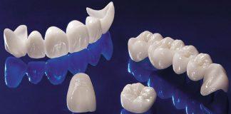 odontoiatra.it, protesizzazione -