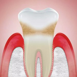 odontoiatra.it, recessioni gengivali - Parodontax