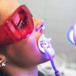 odontoiatra.it, sbiancamento dentale - Dr. Massimiliano Politi
